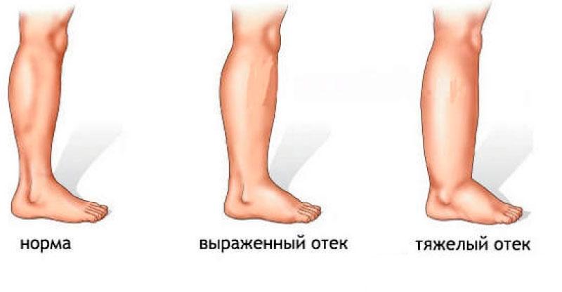 Отеки голеней и стоп у пожилых людей