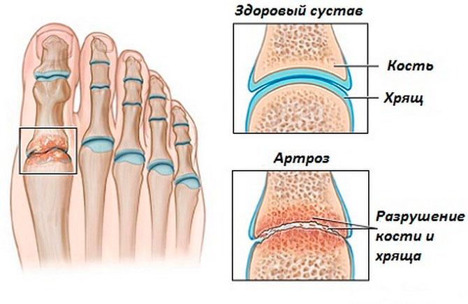 Деформирующий артроз суставов стоп
